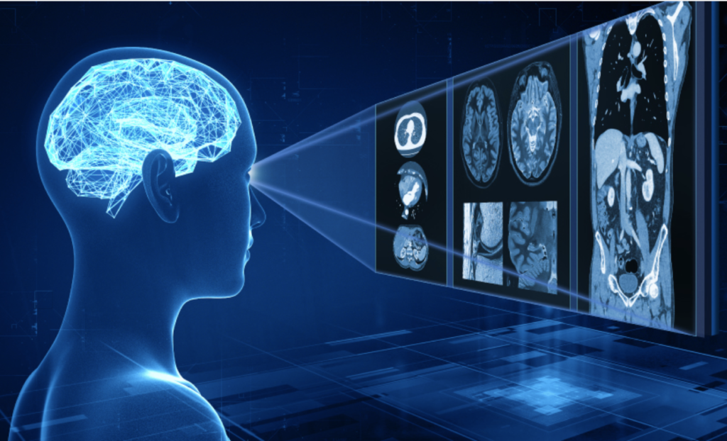 Canon Medical Introduces Image Reconstruction Technology Based on Artificial Intelligence